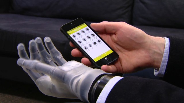 Bionic hand controlled by iPhone app