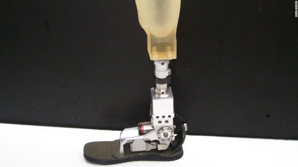 The prosthetic socket is the interface between the body and the prosthetic limb. It can be a major source of discomfort for amputees.