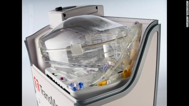 "The TransMedics Organ Care System is a portable device that allows doctors to keep organs ""alive"" during transport."