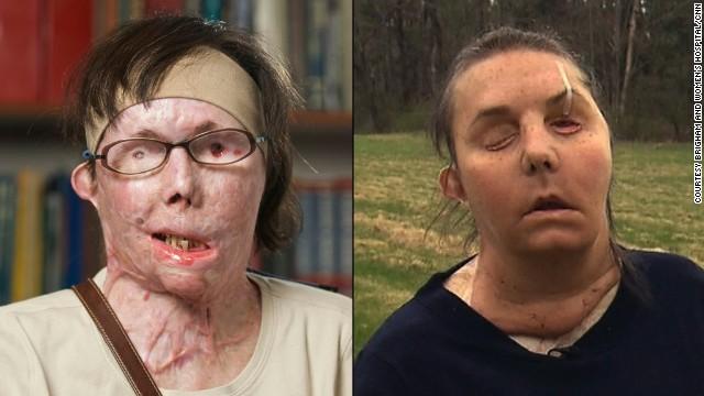 Woman reveals face transplant