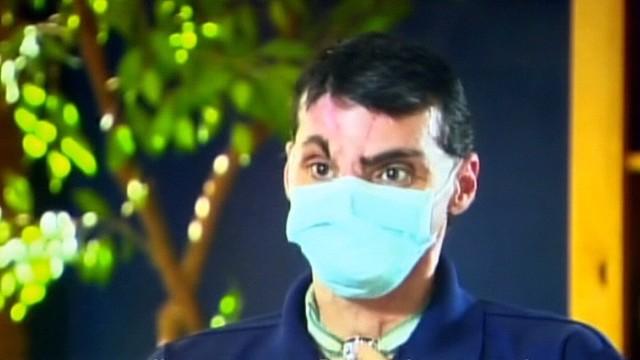 dnt face transplant_00002606.jpg