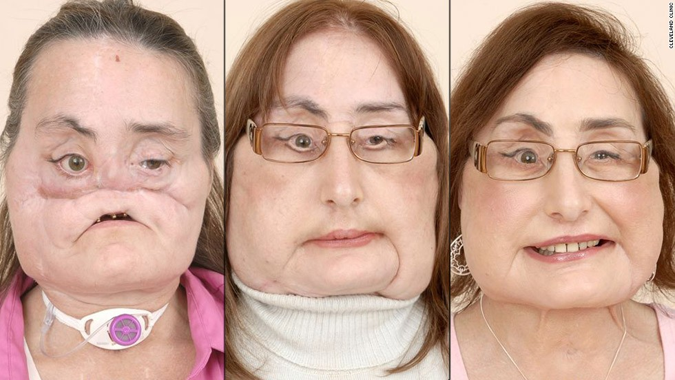 "The first partial face transplant was done in Amiens, France, in 2005. Five years later, <a href=""http://www.cnn.com/2010/HEALTH/04/24/spain.face.transplant/index.html"">doctors in Spain</a> completed the world's first full-face transplant on a man who severely damaged his face in an accident -- giving him a new nose, lips, teeth and cheekbones during 24 hours of surgery. The first full-face transplant done in the United States was performed on <a href=""http://www.cnn.com/2013/05/02/health/face-transplant-patients "">Connie Culp</a>, seen here, in 2008."