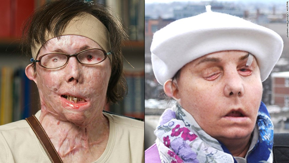 "Carmen Blandin Tarleton became disfigured after her estranged husband doused her with industrial-strength lye. After a face transplant, she says she's ""thrilled"" and has a new goal: to kiss her boyfriend."
