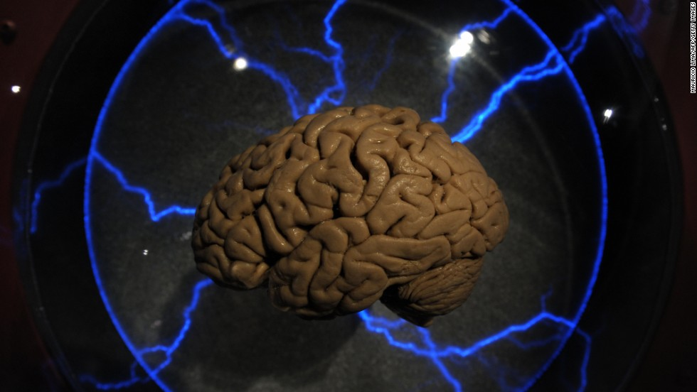 U.S. researchers are hopeful that human trials on a revolutionary memory implant will be fruitful. Scientists say that the implant could help people restore the memories of people who have had a stroke or suffered localized brain injury.
