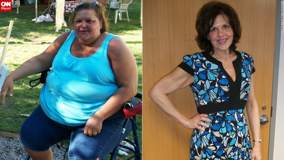 "At her heaviest in March 2011, Theresa Borawski weighed 428 pounds. ""I could no longer participate in life's activities and was forced to become a spectator while people around me lived their life,"" she wrote on iReport.com. ""Today, <a href=""http://www.cnn.com/2013/05/10/health/borawski-weight-loss-irpt/index.html"">I am 276 pounds lighter</a>, 14 jean sizes smaller, and no longer need a wheelchair, walker or cane to get around."""