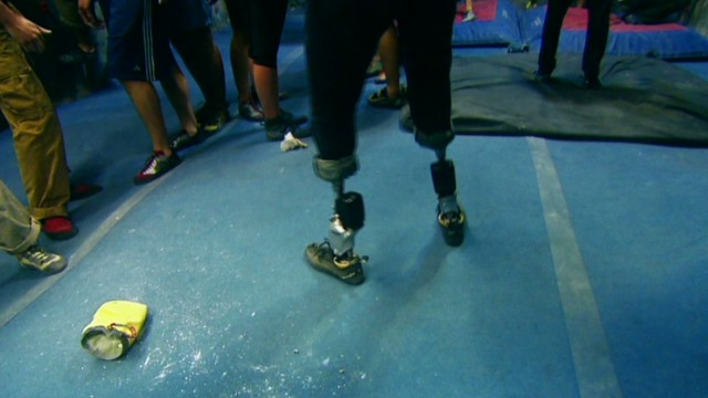 The world's most advanced bionic leg