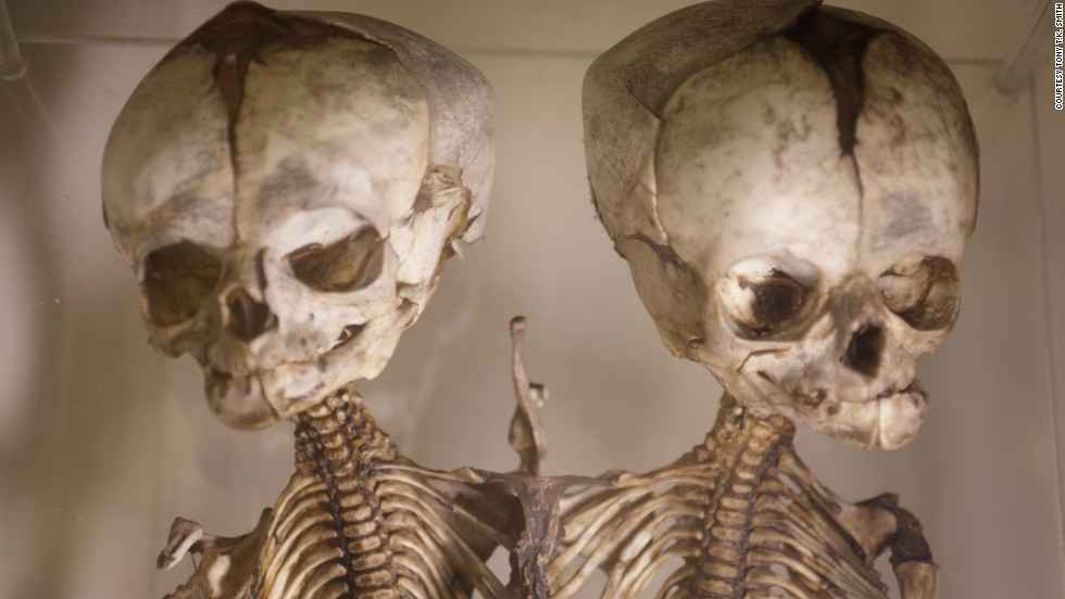 This London museum houses nearly 5,000 medical oddities, including random objects pulled from human bodies over the past 150 years -- toothbrush in the esophagus, anyone?