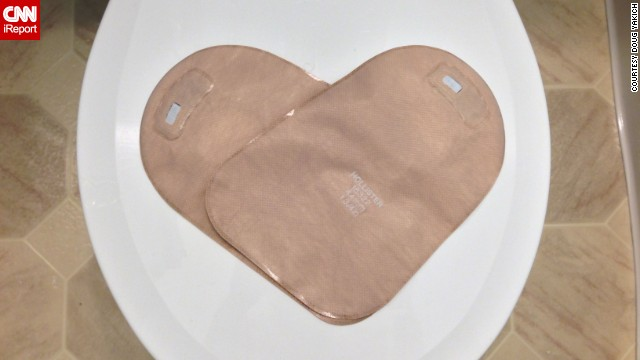 Two ostomy bags form a heart.