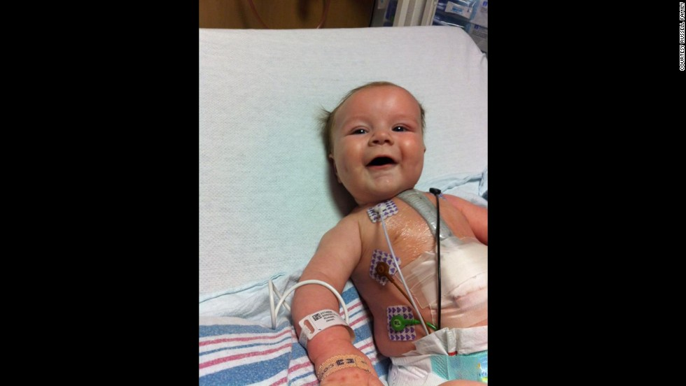 """Jaxon had a second surgery on February 5 at a different hospital. His parents say it lasted four hours longer than expected because of an infection and scar tissue from the first surgery. """"The first surgery was botched,"""" his father, Shannon, says."""