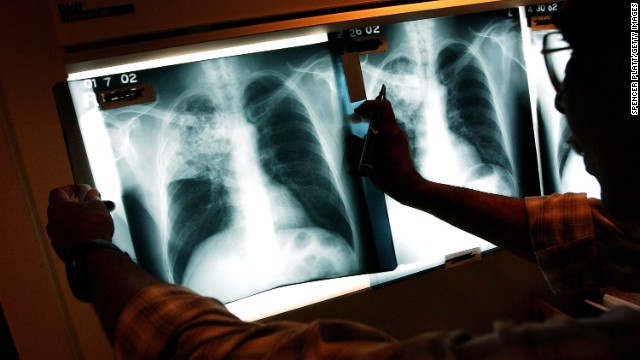 Gupta: Tuberculosis is a 'very contagious disease'