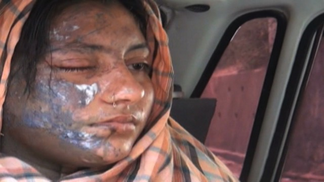 Actress severely burned in acid attack