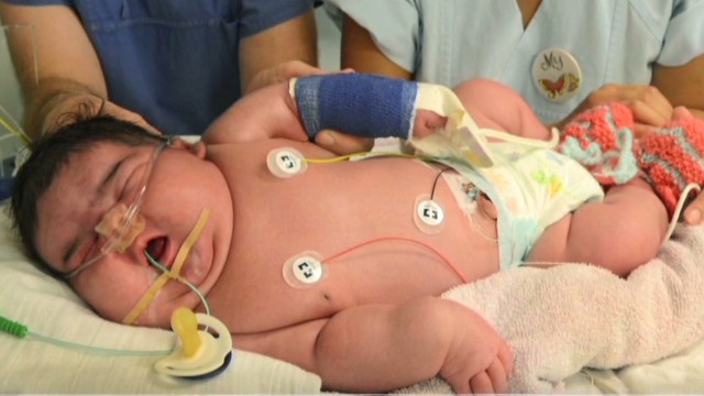 Doctor: No idea 13-lb. baby was so big