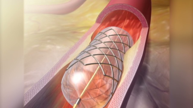 See how a stent works