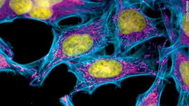 These HeLa cells were stained with special dyes that highlight specific parts of each cell.
