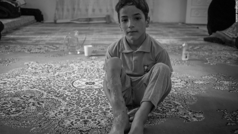 4-year-old Mohammed crossed into Jordan from Syria with two broken legs, a fractured skull, two broken arms and a smashed pelvis after his home caved in during intensive shelling.