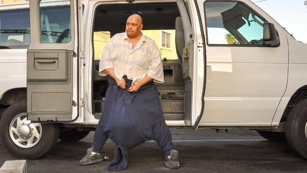 the man with the 132-pound scrotum': unraveling the medical, Skeleton