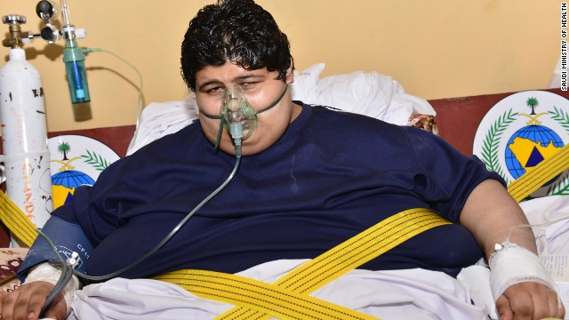 Saudi king orders help for obese man
