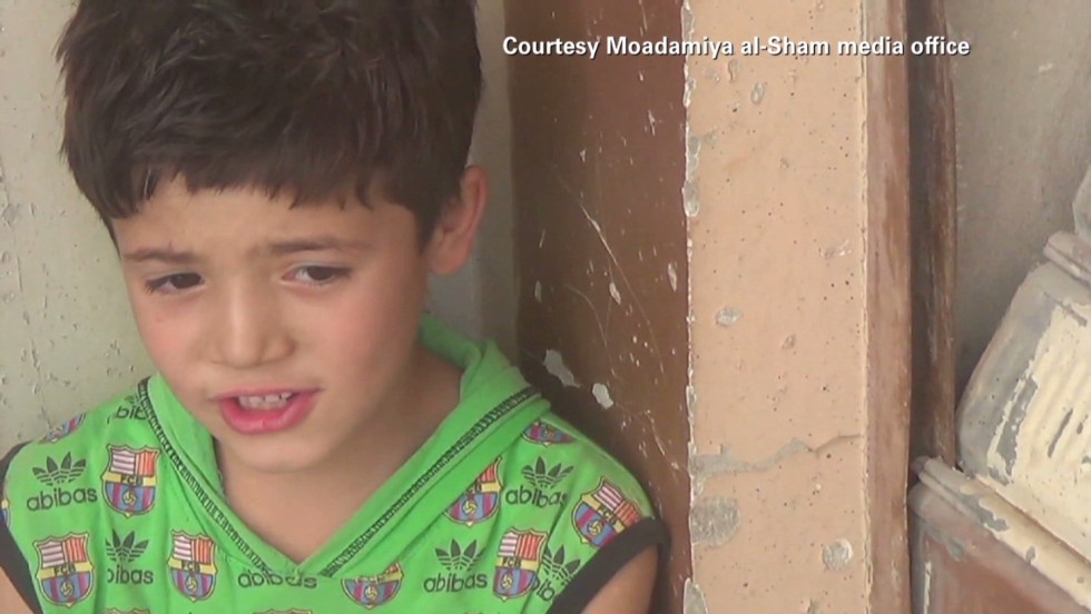 Syrian children suffering malnutrition
