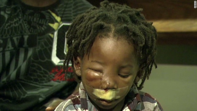 sotvo chicago shooting injured boy_00005910.jpg