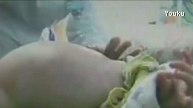 erin chiou 2 year old has surgery remove twin fetus_00001621.jpg