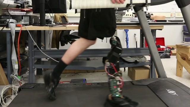cnnee bionic leg_00020102.jpg