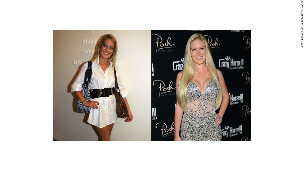"Heidi Montag started with breast augmentation and a nose job in 2007 and eventually<a href=""http://www.cnn.com/2010/SHOWBIZ/TV/01/13/heidi.montag.plastic.surgery/""> opted for 10 surgeries</a> in order to change her look -- leaving her unrecognizable to many of her fans from the reality show ""The Hills."""