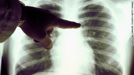 The lung cancer symptoms even nonsmokers need to know