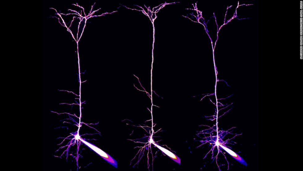 Dr. Alexandre William Moreau; Institute of Neurology, University College London; Pyramidal neurons and their dendrites visualized in the visual cortex of a mouse brain