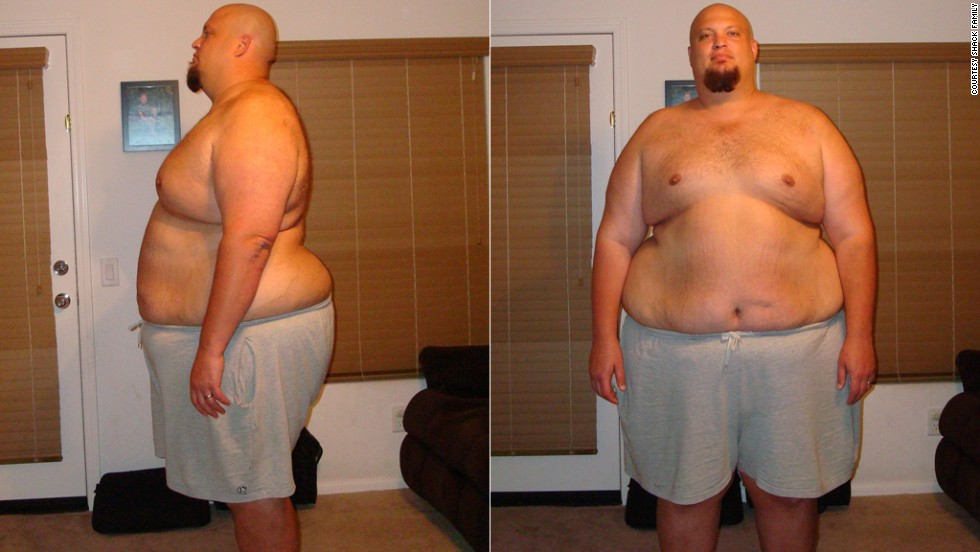 At his heaviest in June 2009, Matthew Shack weighed 500 pounds. He decided he was going to lose weight by tracking his calorie intake every day.