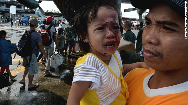 A two year old girl with burn injuries to her face waits to board an evacuation flight from Tacloban airport on November 17, 2013