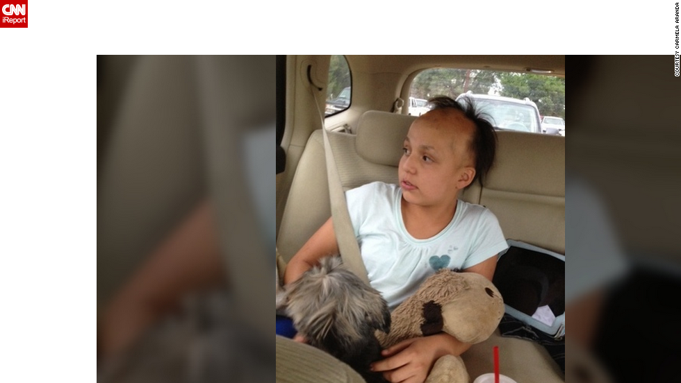 Katarina went completely bald when she was 9. Her hair has started to grow back in patches this year, something that can happen to people with alopecia. But the patchiness of her hair has not deterred her from forgoing her wig.