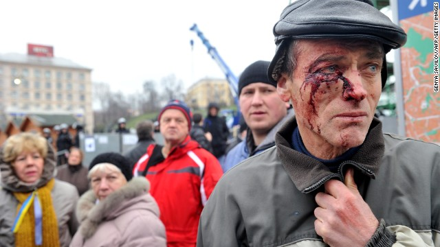 A protester injured in clash with police, stands on Independence Square in Kiev on November 30, 2013. Ukraine police swinging truncheons early Saturday brutally dispersed protesters calling for President Viktor Yanukovych to resign after he refused to salvage an EU deal. A rally of some 10,000 protesters led by top opposition leaders like world boxing champion Vitali Klitschko had late Friday called for the president to step down after he left an EU summit in Vilnius without signing a key political and free trade deal. AFP PHOTO/ GENYA SAVILOV        (Photo credit should read GENYA SAVILOV/AFP/Getty Images)