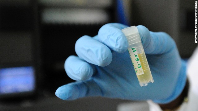 New HIV vaccine to be trialled in South Africa