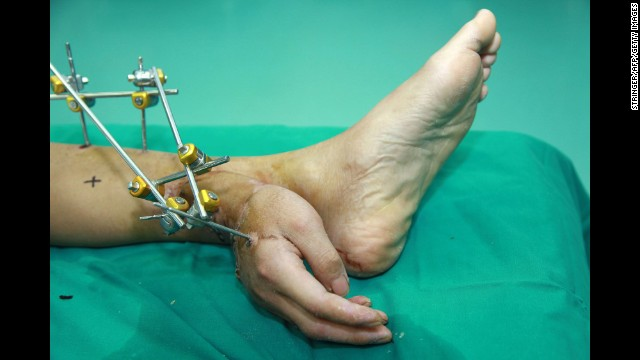 Man's hand grafted onto his ankle