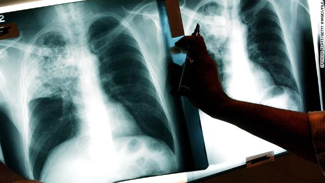 NEW YORK- NOVEMBER 27: A doctor examines the x-rays of a tuberculosis (TB) patient at a TB clinic Novmeber 27, 2002 in Brooklyn, New York.  (Photo by Spencer Platt/Getty Images)