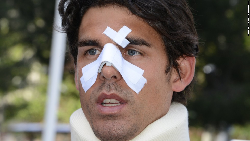 Drouet is pictured here after the assault. In a diary that was later published by an Australian newspaper, Drouet claimed John Tomic punched his son in the face and shot him in the leg with a BB gun.