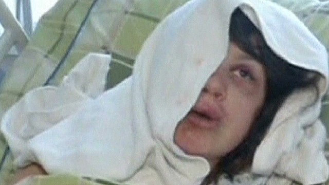 tsr live dougherty journalist beaten in Ukraine_00012424.jpg