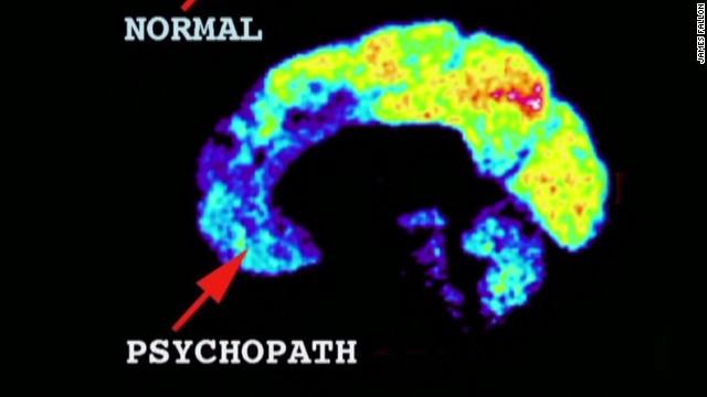 ac intv psychopathic traits in brain_00003007.jpg