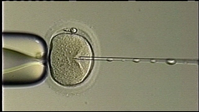 Should you worry about switched sperm?