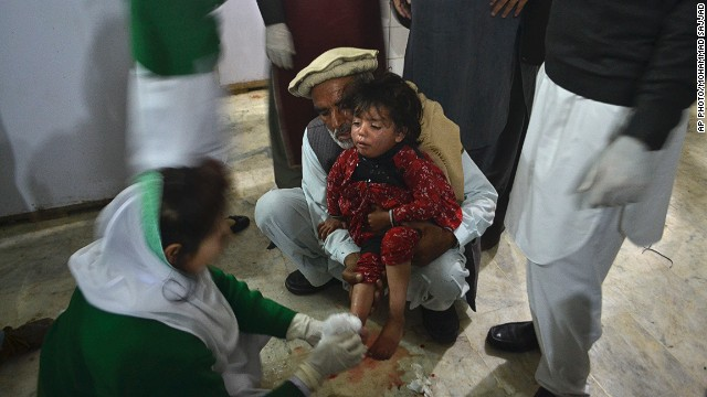A child wounded from the suicide bombing receives treatment at a hospital in Peshawar, Pakistan, on February 4, 2014.