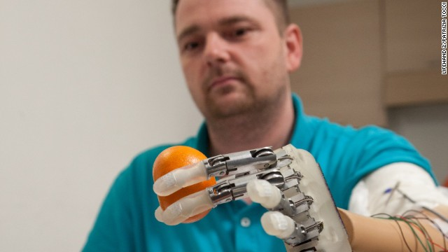 Artificial hand lets amputee feel objects
