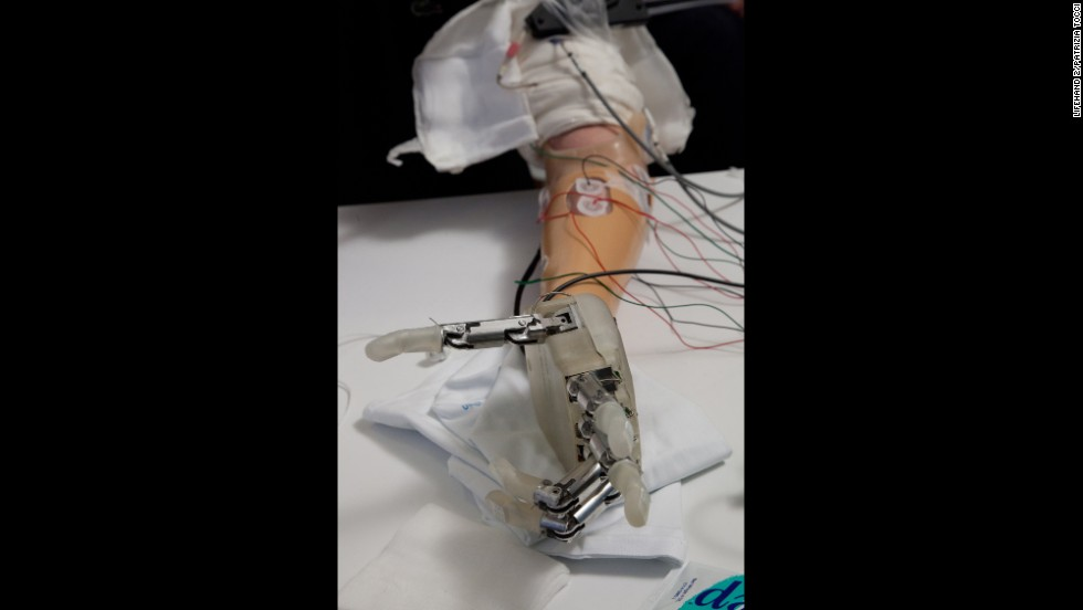 Researchers surgically implanted electrodes in nerves in Sorensen's left arm so that he could use the hand to feel in a natural way.
