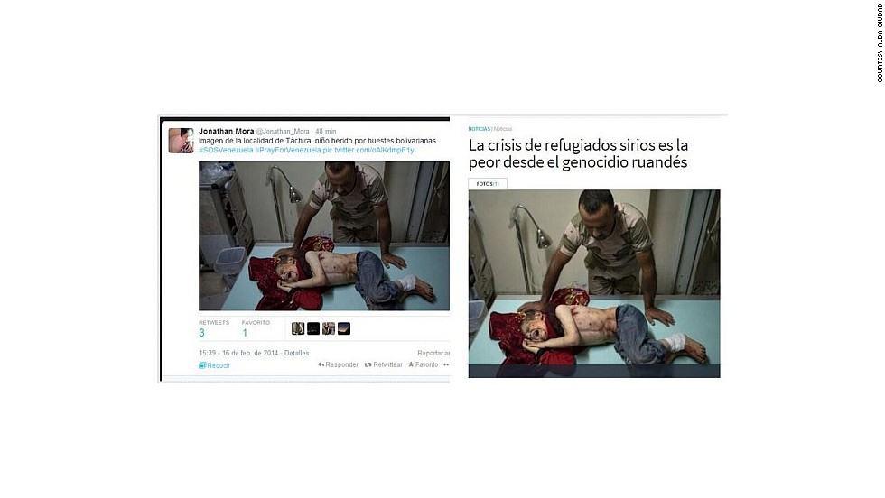 """People tweeting this photo this week alleged that it showed a child injured in the state of Tachira. This is actually an image of a child wounded in the Syrian conflict. The United Nations <a href=""""http://www.cnn.com/2013/12/12/world/meast/syria-civil-war/"""">confirmed that chemical weapons were used </a>against civilians, including children, in August."""