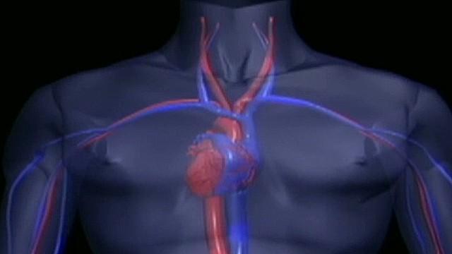 cnnee dra azaret heart care _00021711.jpg