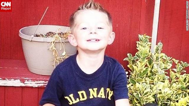 Tristan Coffey has juvenile dermatomyositis.
