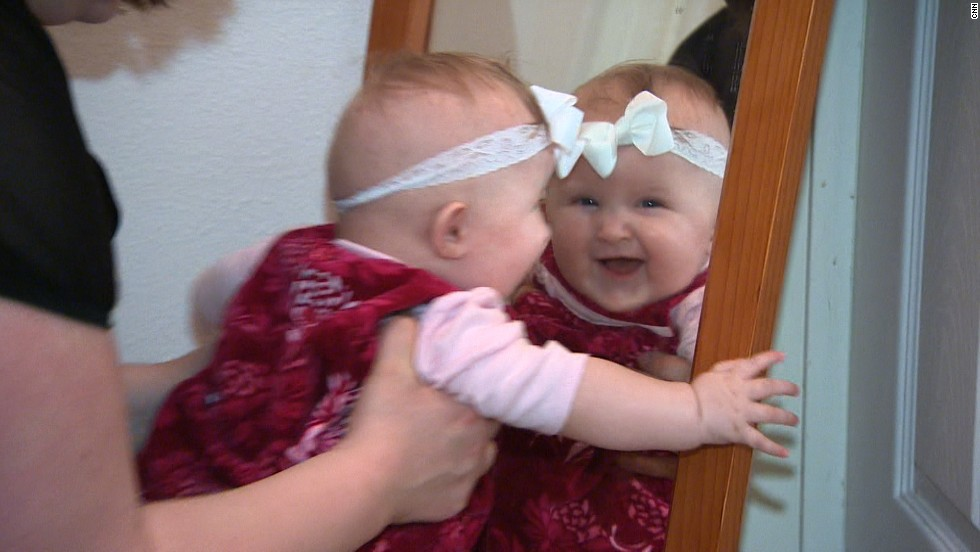 Doctors are hopeful Olivia will walk with the assistance of leg braces when she gets older.