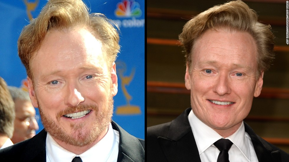 Conan O'Brien sports a ginger beard at the 2010 Primetime Emmy Awards, and is seen smooth-faced at the 2014 Vanity Fair Oscar Party.