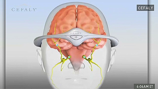 Migraine? This 'tiara' can prevent it