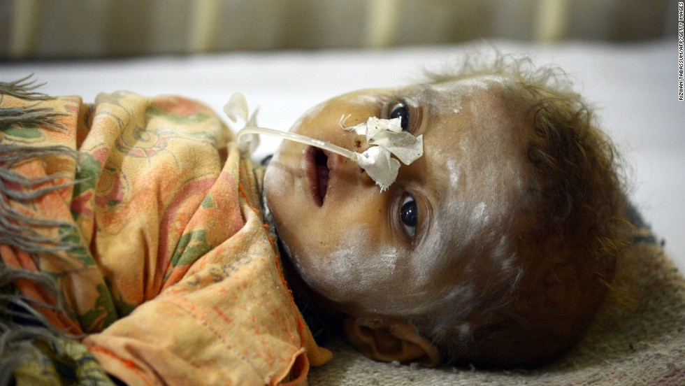 A child affected by famine is treated at a government hospital in Mithi, Pakistan, on Tuesday, March 11.