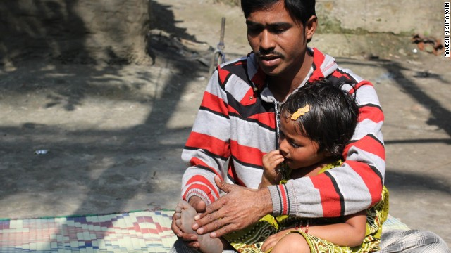 Rukhsar is the last reported case of polio in India. Her father says he blames himself for not getting his daughter vaccinated.